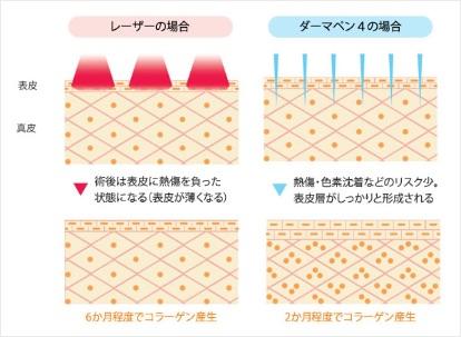 フラクショナルレーザーとの違いを説明した図